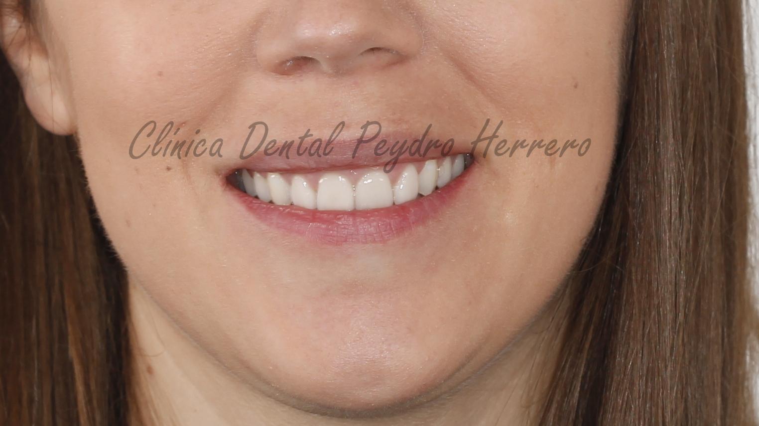 tratamiento de ortodoncia invislaign