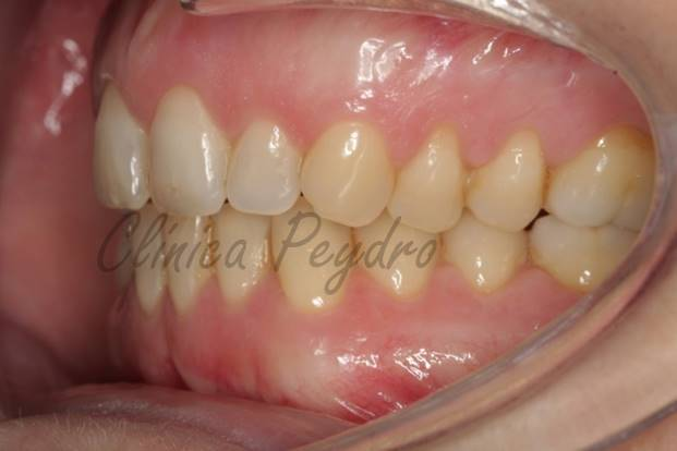técnica de ortodoncia invisible