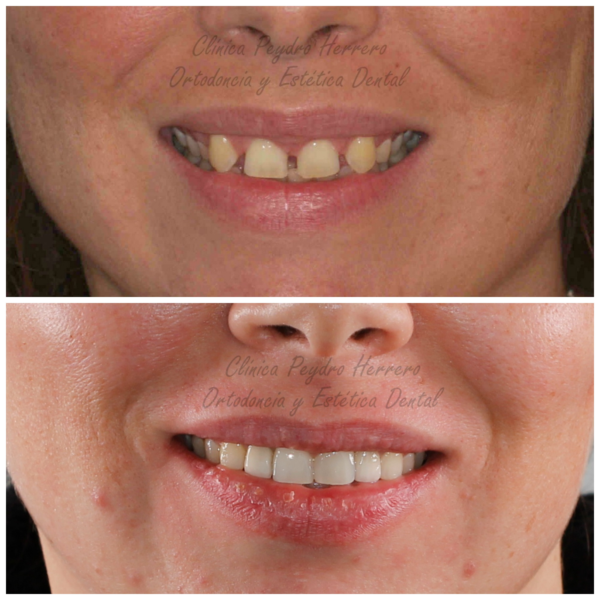 tratamiento de odontología multidisciplinar