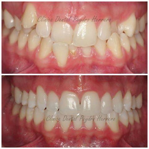 mejorar con ortodoncia invisible