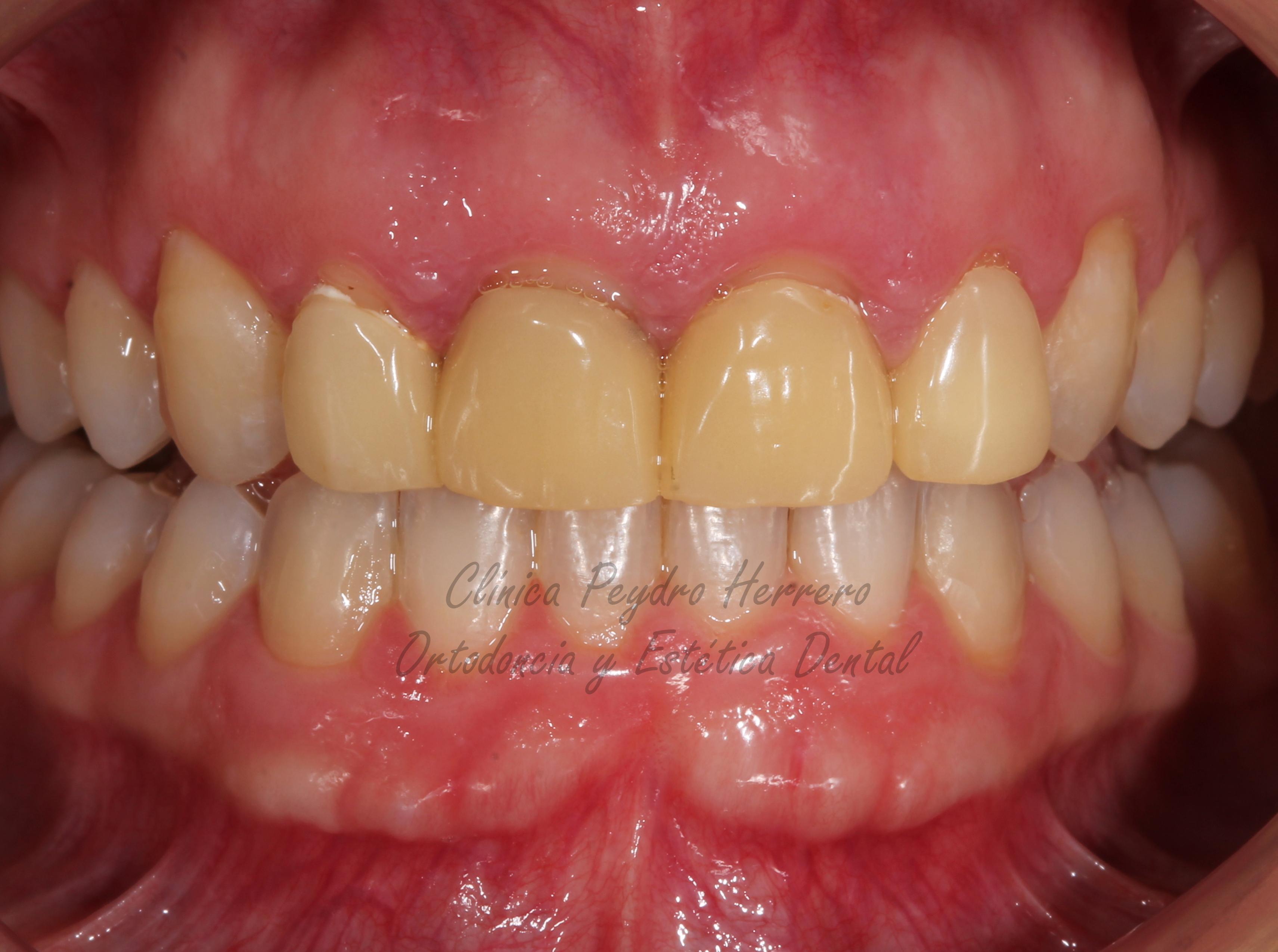 5- fin de la ortodoncia Y ALARGAMIENTO DECORONAS