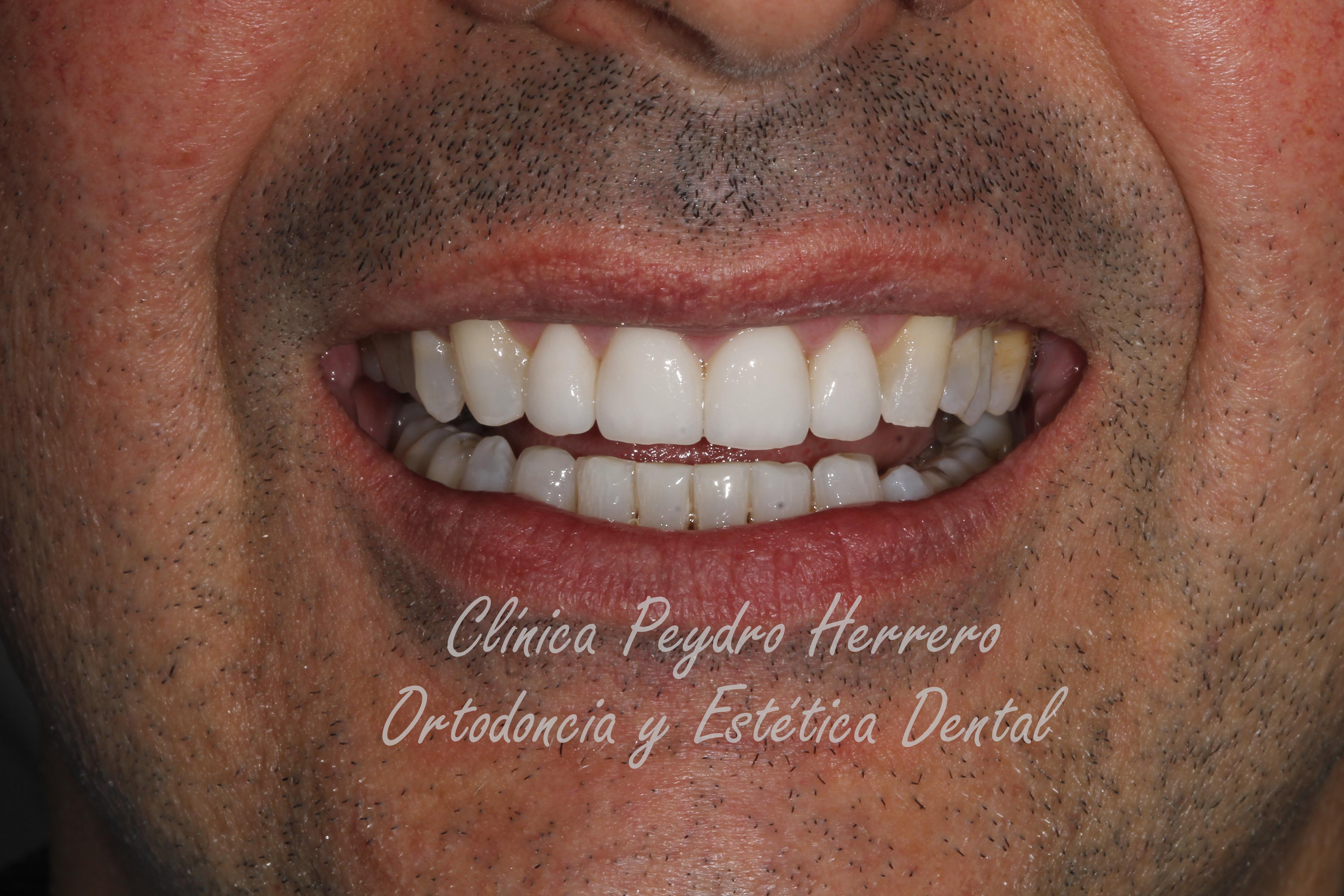 dientes desgastados