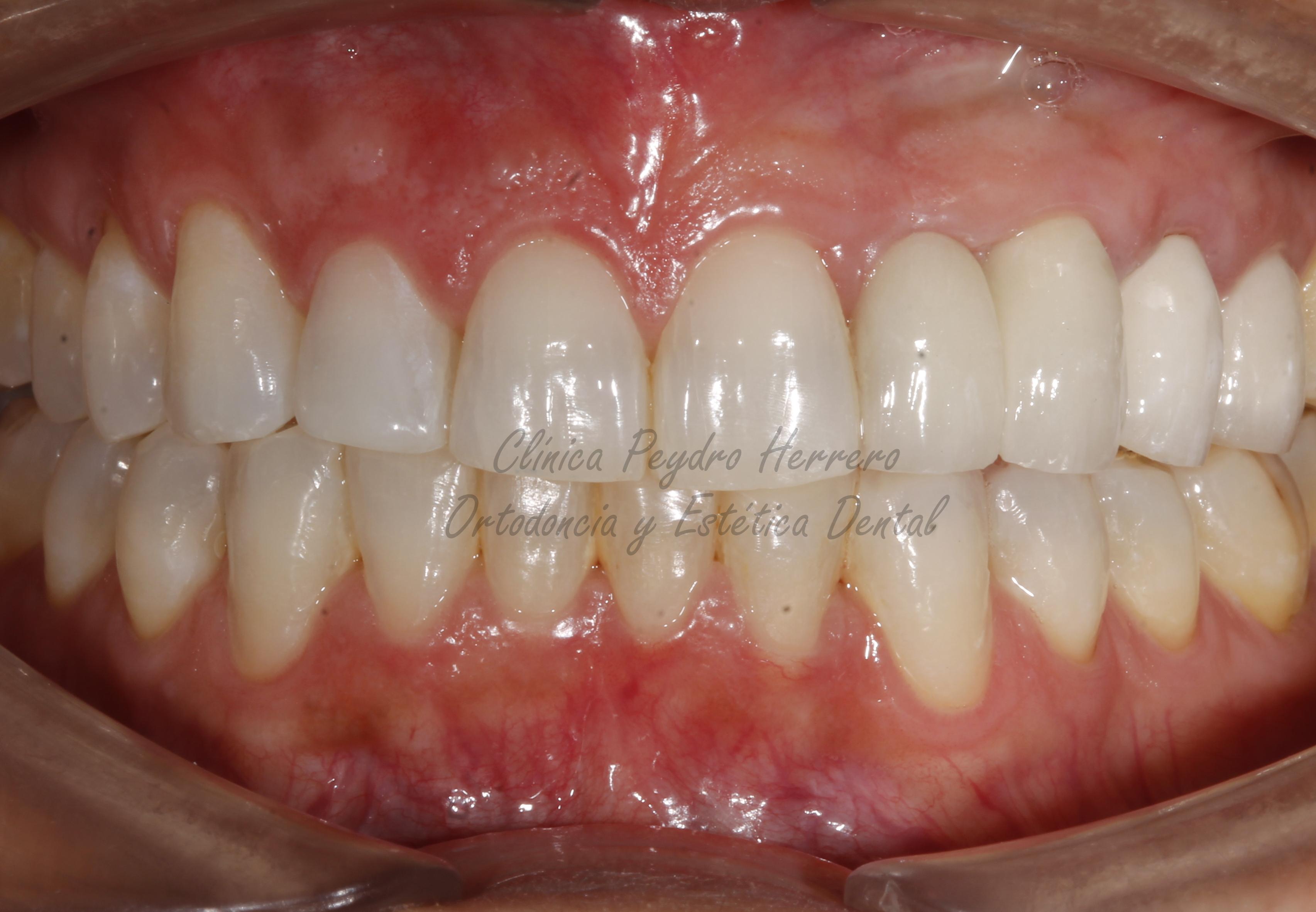 caso clínico de ortodoncia