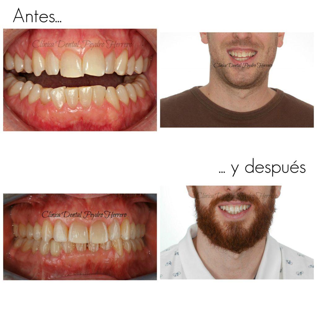 poder de la sonrisa