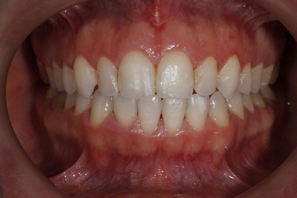 dientes cortos