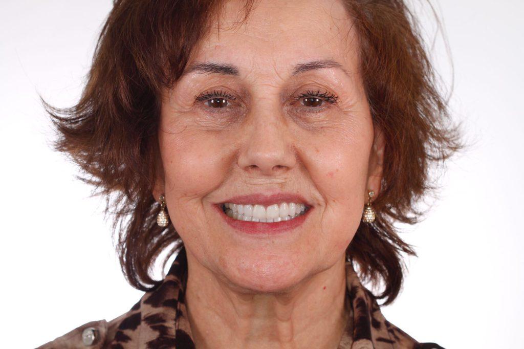 testimonio ortodoncia paciente adulto