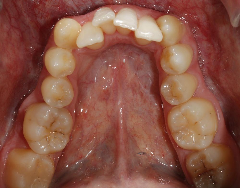 apiñamiento dental severo